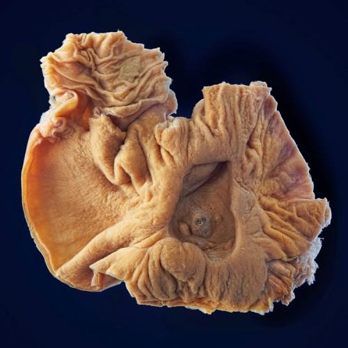 Ulcera dell'arteria splenica (1902)